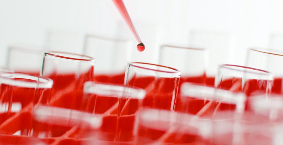 Qué es la Hemofilia